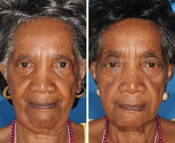 Identical Twins Smoking Study-3
