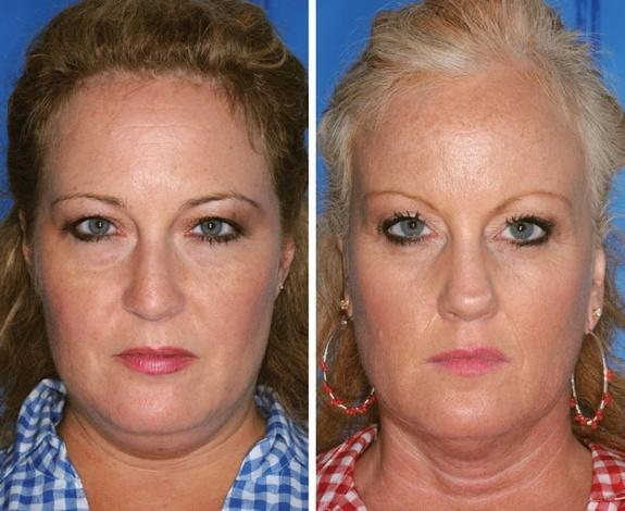 Identical Twins Smoking Study-4